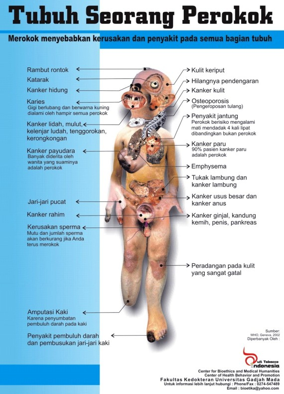 GAMBAR tubuh perokok parah